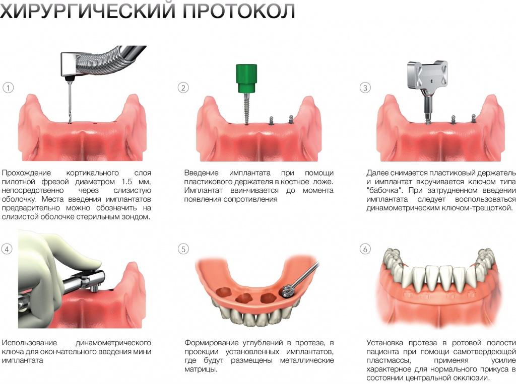 Имплантация зубов цены в украине
